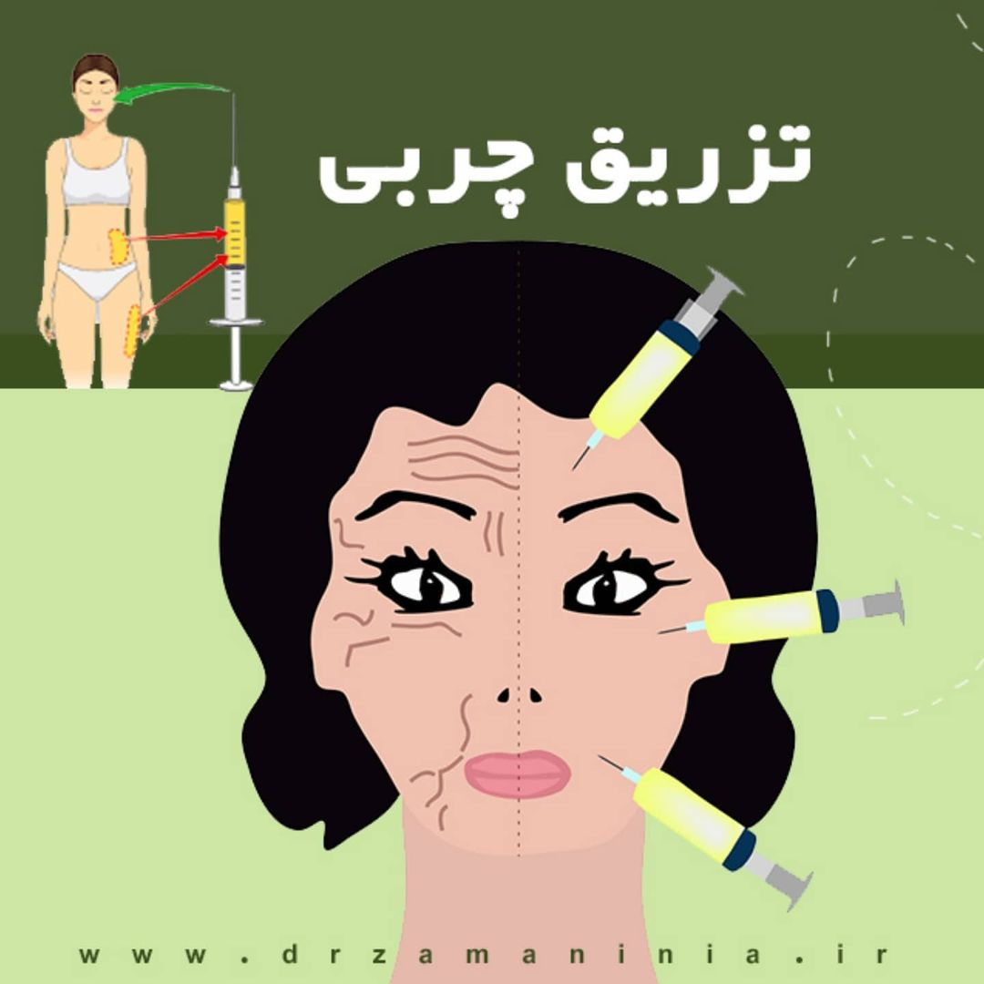 تزریق چربی چیست