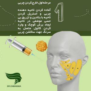 اولین مرحله تزریق چربی استخراج چربی است