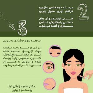 مرحله دوم و سوم تزریق چربی