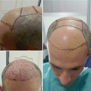 پیوند مو توسط دکتر زمانی نیا