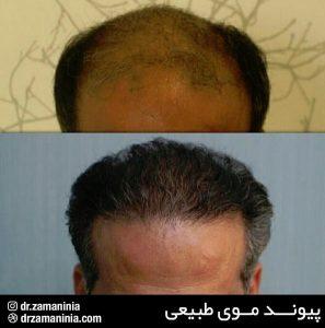 پیوند مو در آقایان
