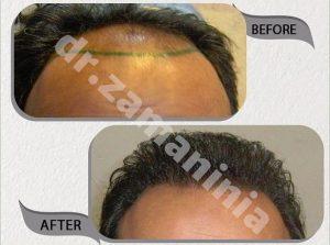 کاشت مو در مرد 38 ساله