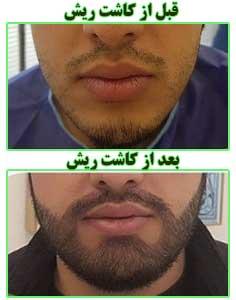 قبل و بعد از کاشت ریش طبیعی