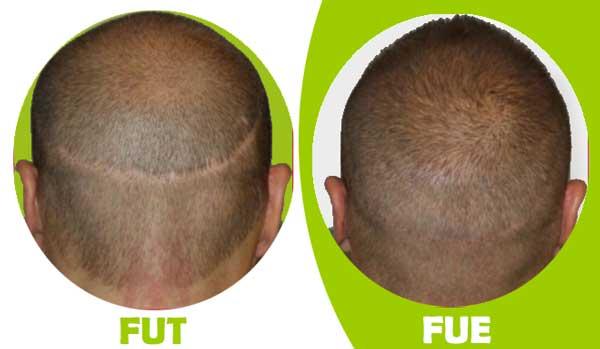 تفاوت کاشت مو FUT و FUE